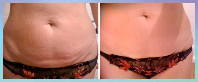 weniger Cellulite